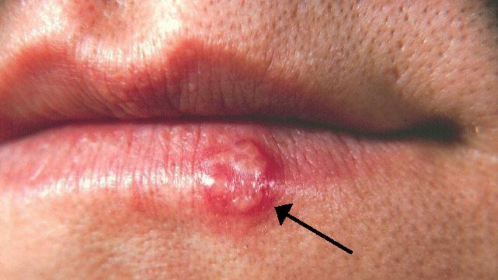 Effectiveness of Herpes Treatments